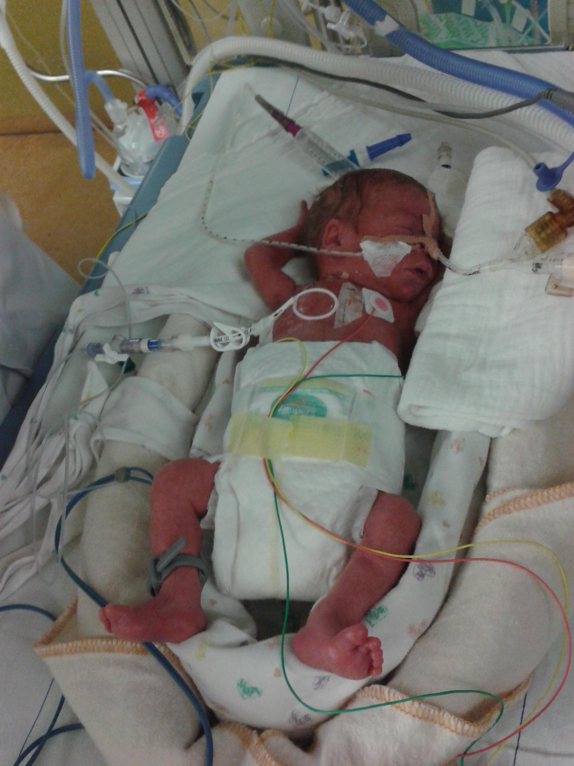 d01c81988dc Tamara (31) beviel toen ze 27 weken zwanger was - ShePostsOnline